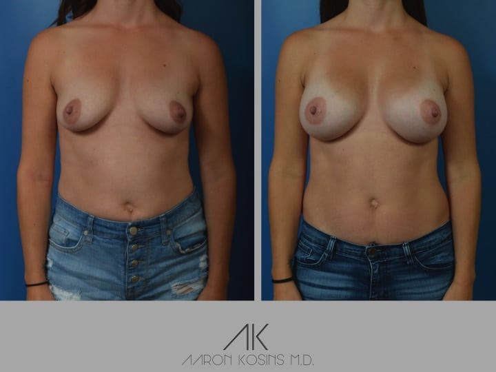 Slide03 1 - Newport Beach Breast Augmentation
