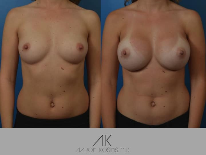 Slide07 - Newport Beach Breast Augmentation