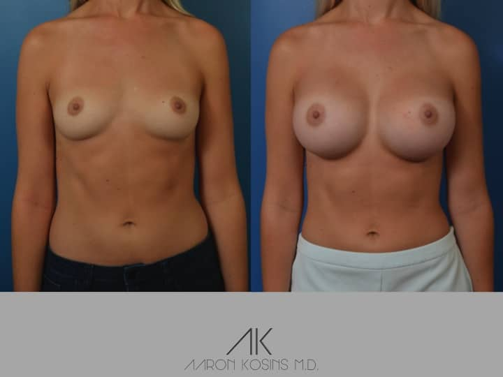 Slide08 - Newport Beach Breast Augmentation