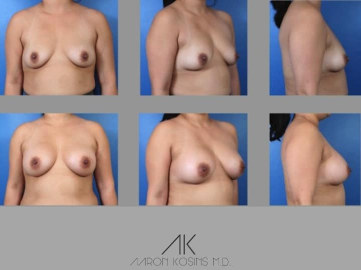 Slide121 - Newport Beach Breast Augmentation