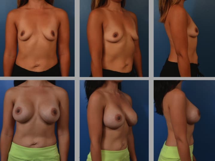 Slide14 - Newport Beach Breast Augmentation