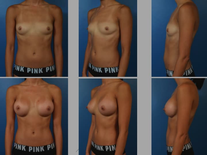 Slide18 - Newport Beach Breast Augmentation