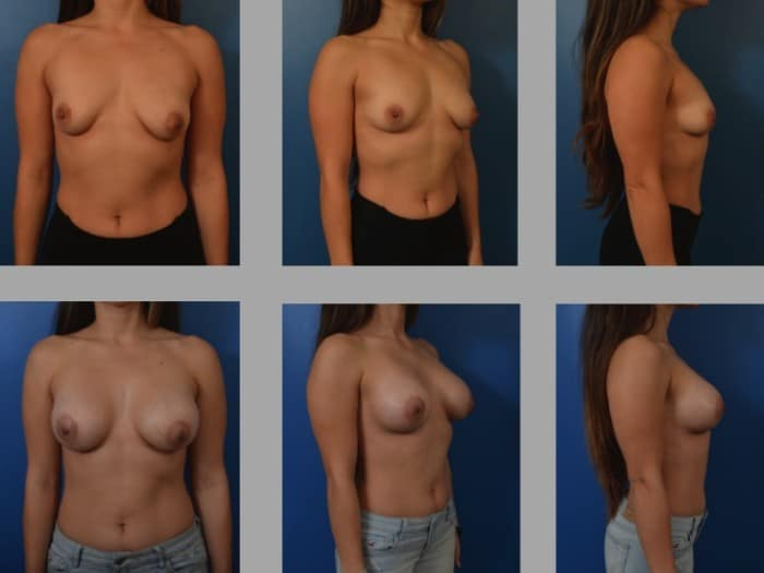 Slide2 5 700x525 - Newport Beach Breast Augmentation