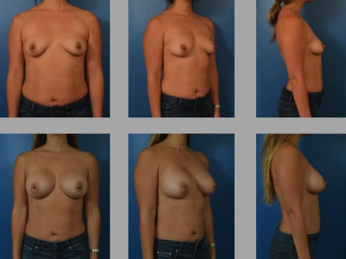 Slide218 700x525 - Newport Beach Breast Augmentation
