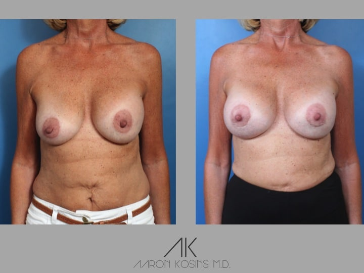 Slide26 - Newport Beach Breast Augmentation
