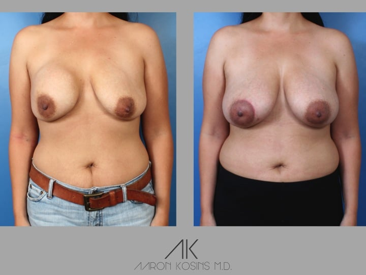 Slide28 - Newport Beach Breast Augmentation