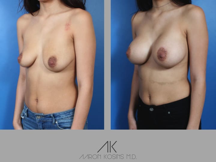 Slide35 - Newport Beach Breast Augmentation