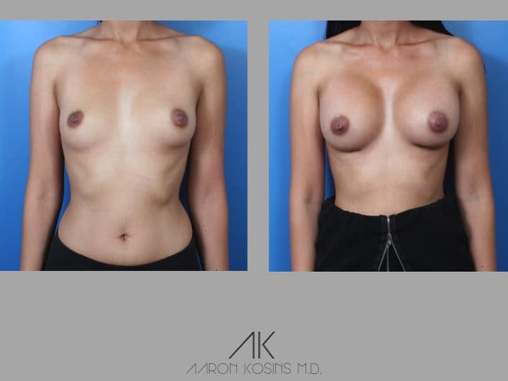 Slide38 - Newport Beach Breast Augmentation
