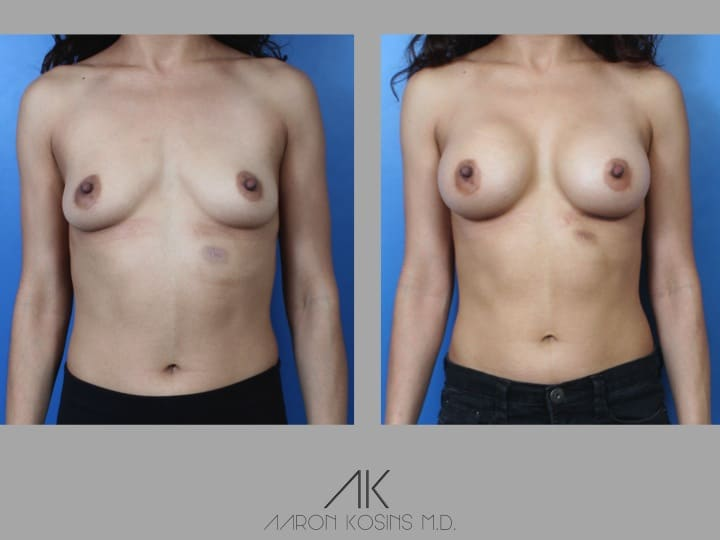 Slide39 - Newport Beach Breast Augmentation