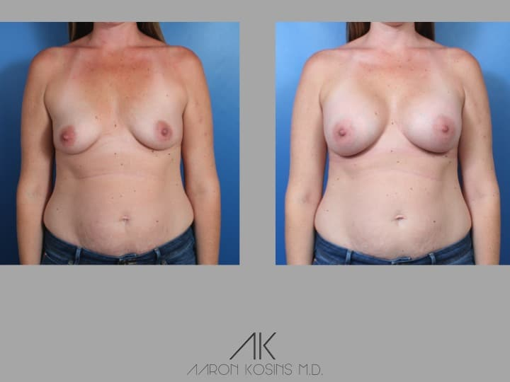 Slide40 - Newport Beach Breast Augmentation