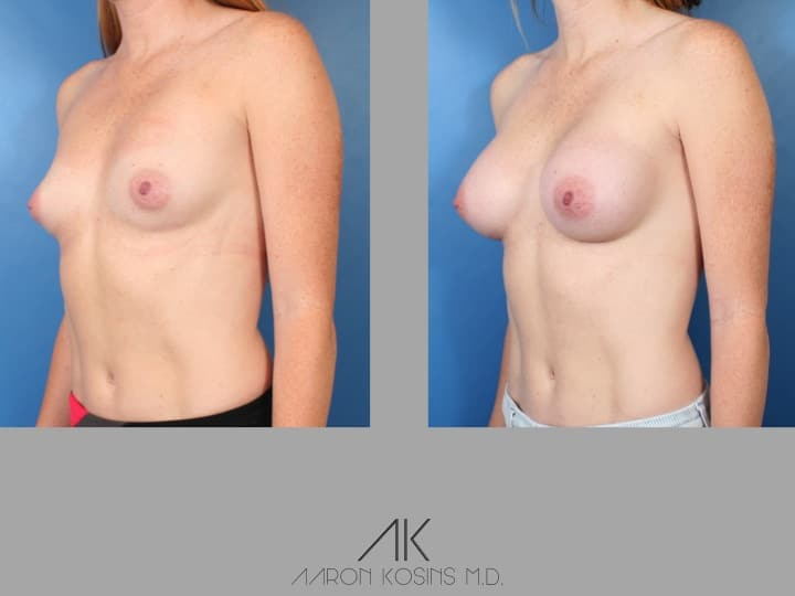 Slide48 - Newport Beach Breast Augmentation