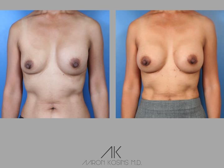 Slide52 - Newport Beach Breast Augmentation