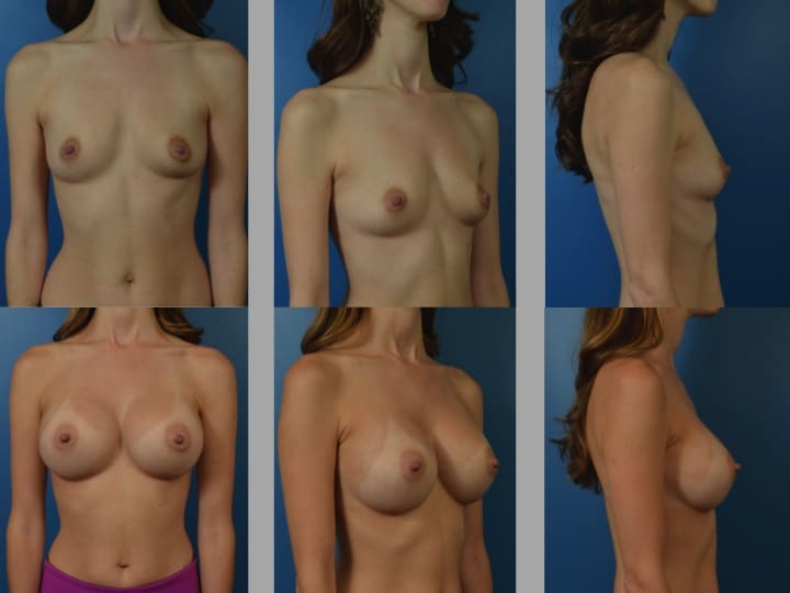 Slide67 - Newport Beach Breast Augmentation