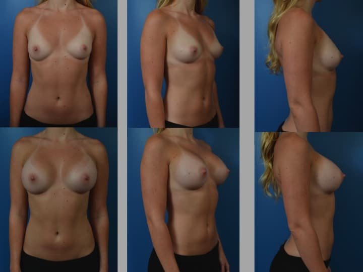 Slide68 - Newport Beach Breast Augmentation