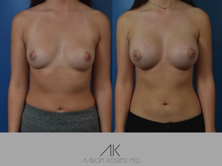 Slide72 - Newport Beach Breast Augmentation