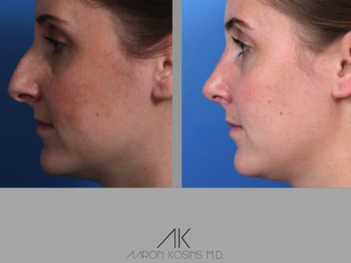 Slide rhino1 - Rhinoplasty Newport Beach