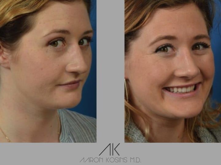 Slide rhino10 - Rhinoplasty Newport Beach