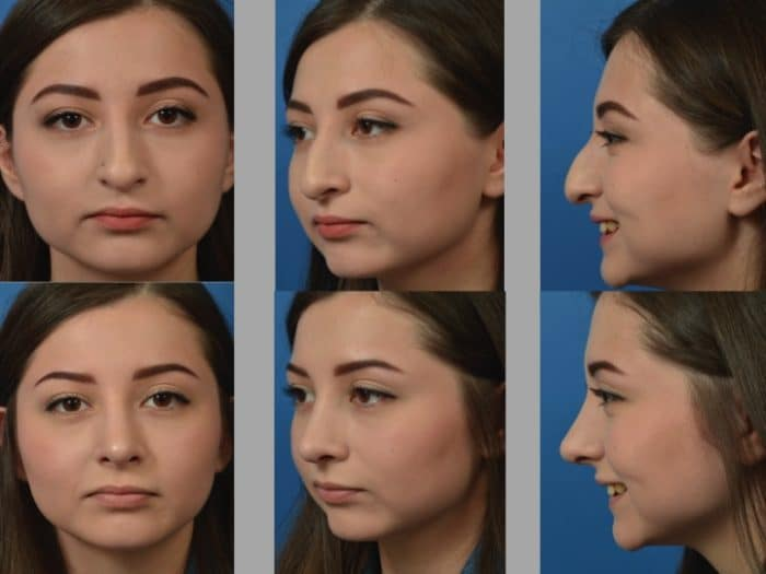 Slide rhino13 - Rhinoplasty Newport Beach