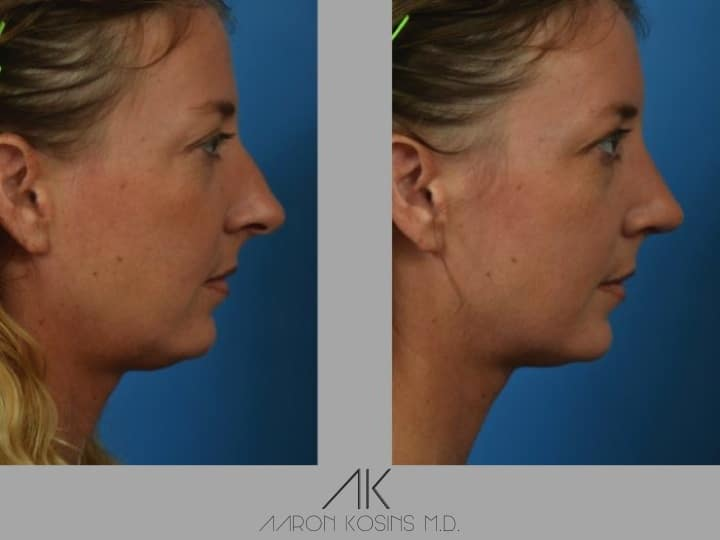 Slide rhino14 - Rhinoplasty Newport Beach