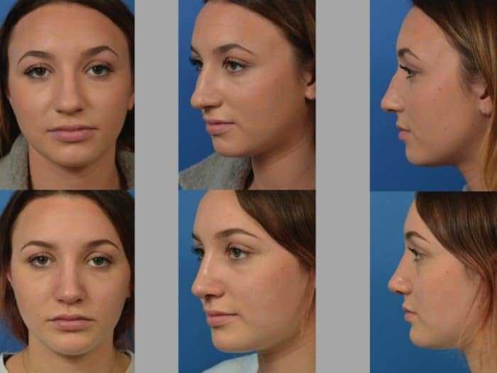 Slide rhino16 - Rhinoplasty Newport Beach