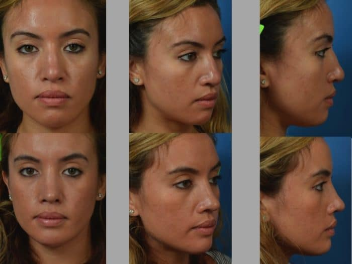 Slide rhino18 - Rhinoplasty Newport Beach