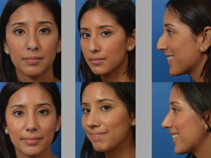 Slide rhino2 - Rhinoplasty Newport Beach