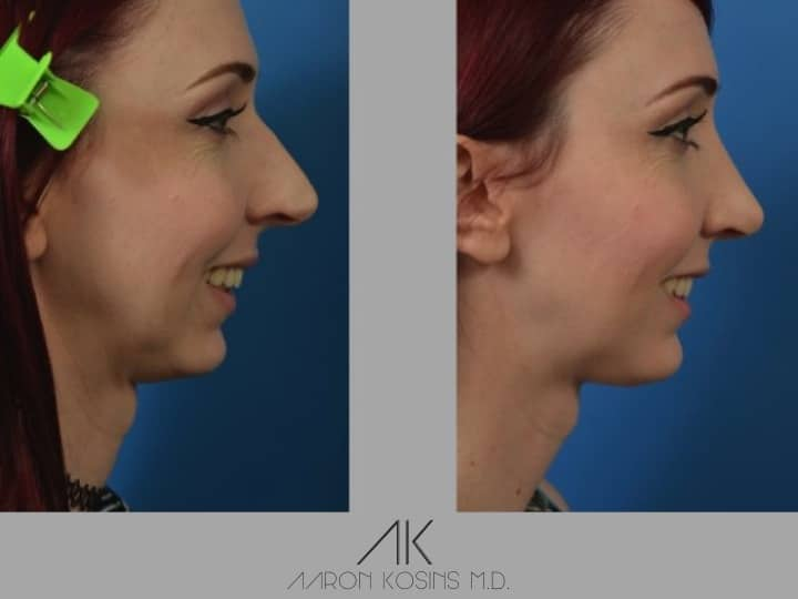 Slide rhino24 - Rhinoplasty Newport Beach