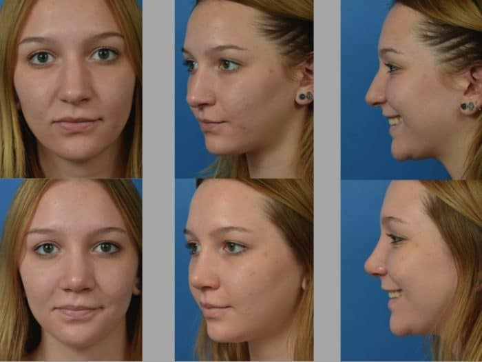 Slide rhino26 - Rhinoplasty Newport Beach