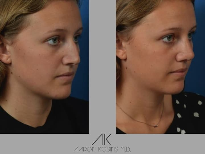Slide rhino28 - Rhinoplasty Newport Beach