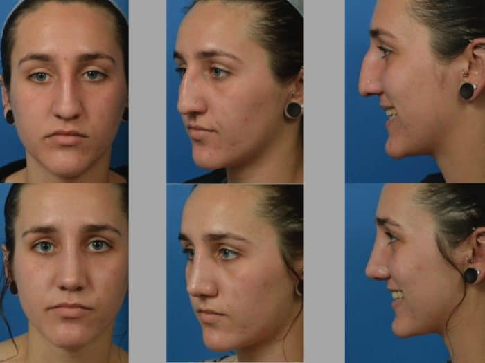 Slide rhino29 - Rhinoplasty Newport Beach