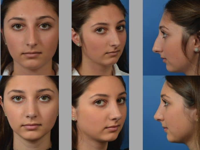 Slide rhino3 - Rhinoplasty Newport Beach