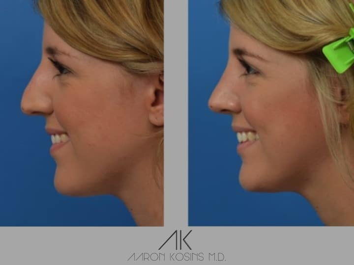 Slide rhino30 - Rhinoplasty Newport Beach