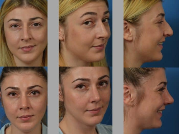Slide rhino31 - Rhinoplasty Newport Beach