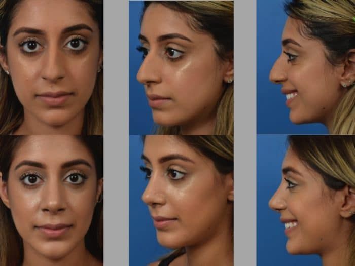 Slide rhino33 - Rhinoplasty Newport Beach
