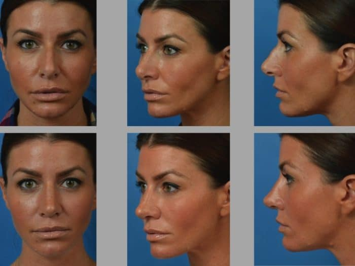 Slide rhino34 - Rhinoplasty Newport Beach