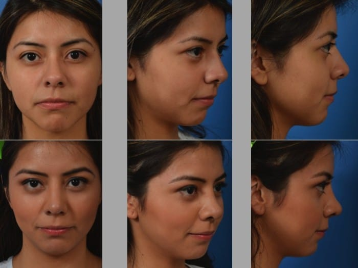 Slide rhino35 - Rhinoplasty Newport Beach