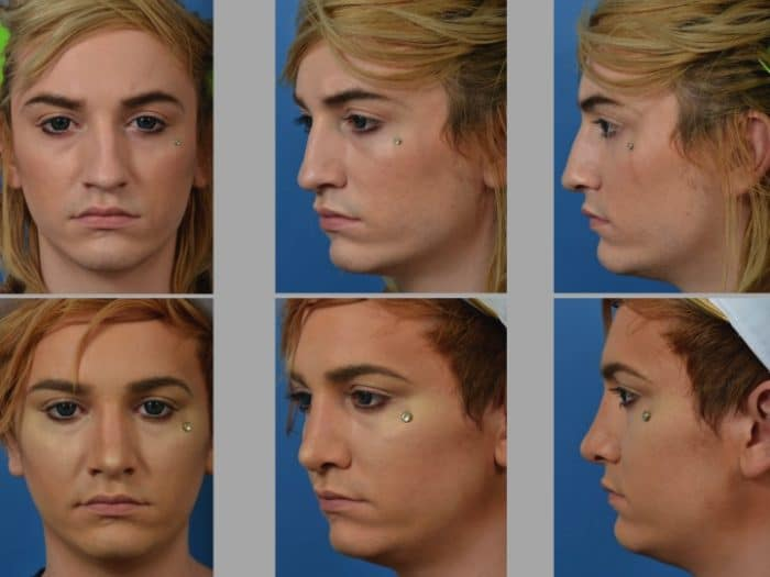 Slide rhino36 - Rhinoplasty Newport Beach