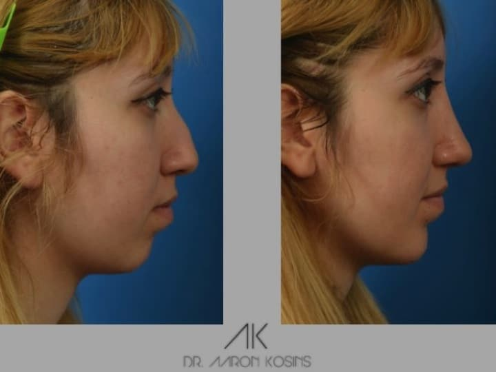 Slide rhino38 - Rhinoplasty Newport Beach