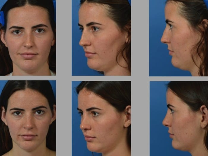 Slide rhino40 - Rhinoplasty Newport Beach