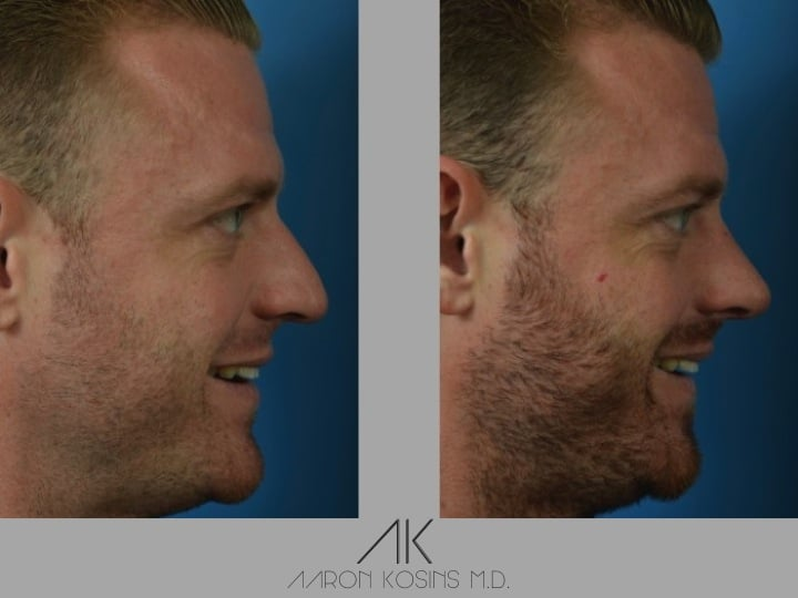 Slide rhino42 - Rhinoplasty Newport Beach