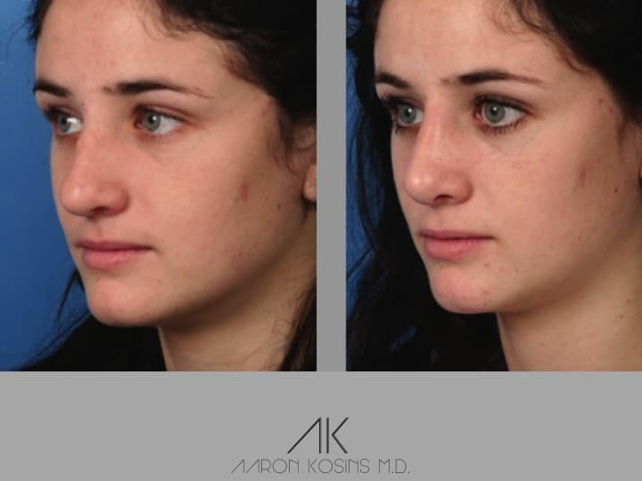 Slide rhino43 - Rhinoplasty Newport Beach