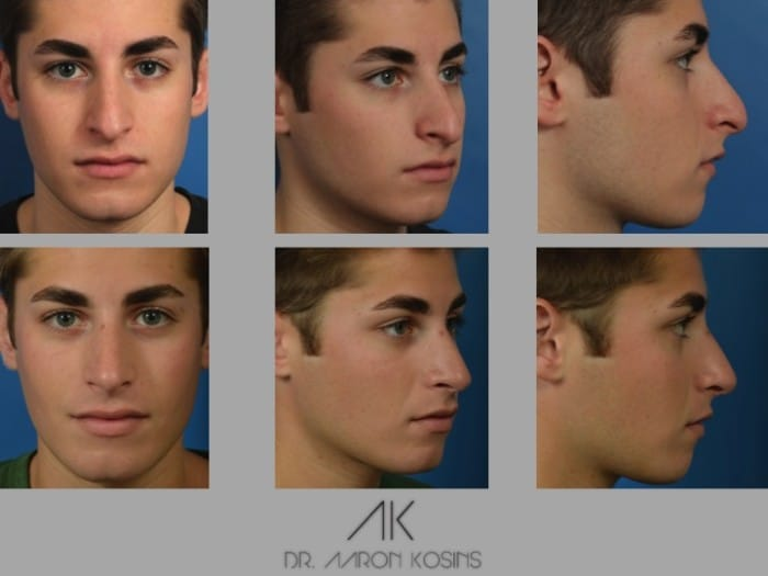 Slide rhino44 - Rhinoplasty Newport Beach