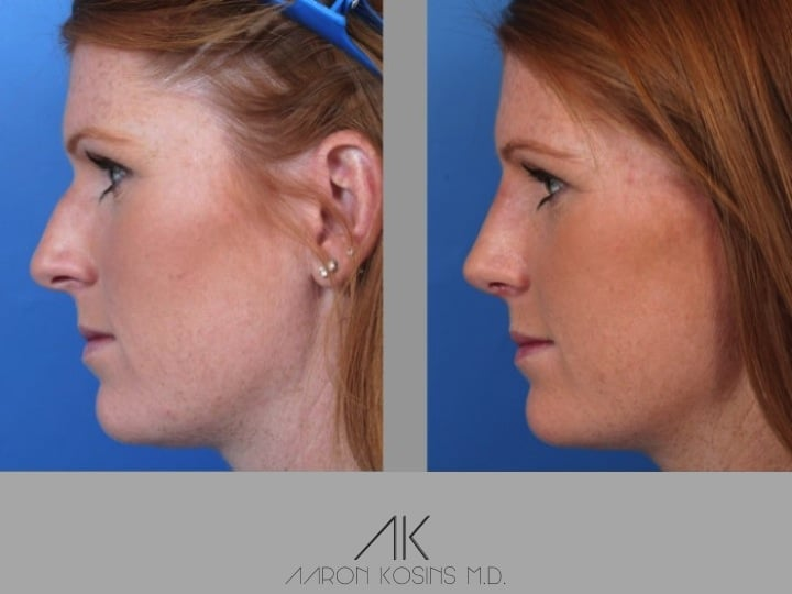 Slide rhino48 - Rhinoplasty Newport Beach