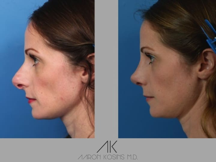 Slide rhino50 - Rhinoplasty Newport Beach