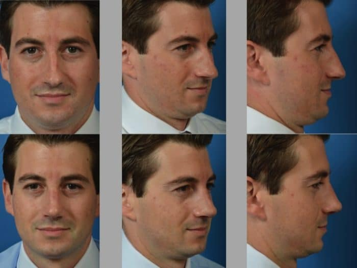Slide rhino51 - Rhinoplasty Newport Beach