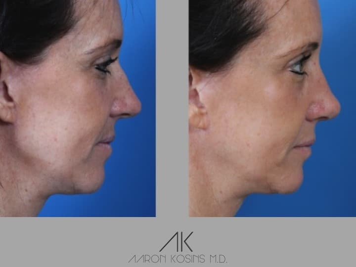 Slide rhino52 - Rhinoplasty Newport Beach
