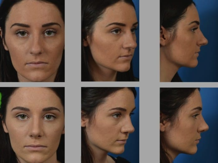 Slide rhino53 - Rhinoplasty Newport Beach