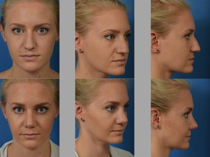 Slide rhino54 - Rhinoplasty Newport Beach