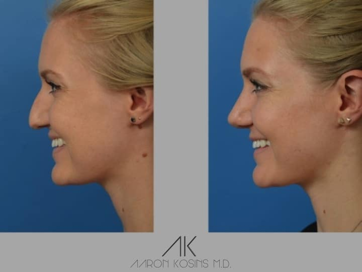 Slide rhino55 - Rhinoplasty Newport Beach