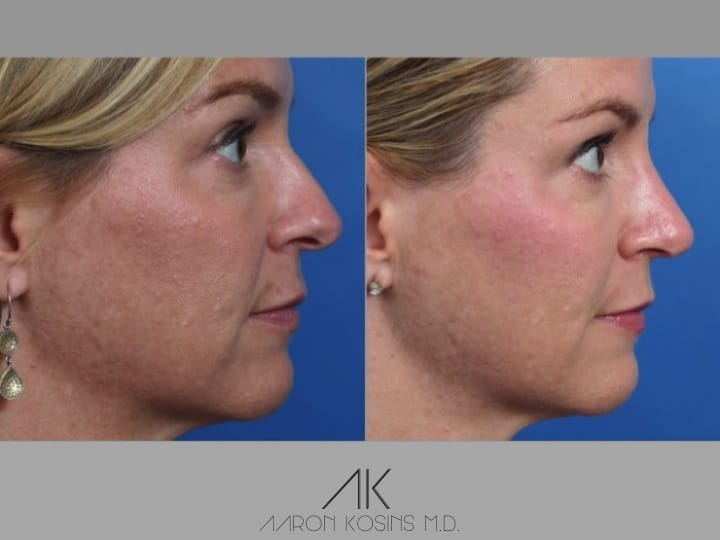 Slide rhino56 - Rhinoplasty Newport Beach